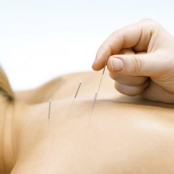 acupuncture tynemouth, paediatric acupuncture